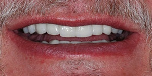Closeup of smile repaired front tooth