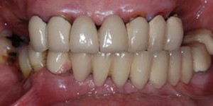 Closeup of teethwithdark coloring and decayaround gums