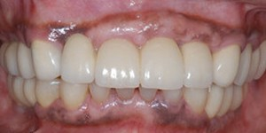 Closeup of healthy complete smile