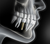 Animaiton of implant denture