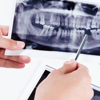 dental x-ray with missing teeth