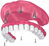 Animation of All-on-4 denture