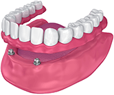 Animation of implant denture