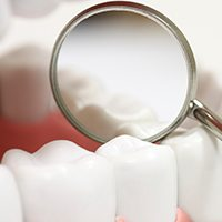 Closeup of teeth with sealants