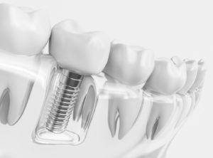 dental implant and crown in transparent jaw model