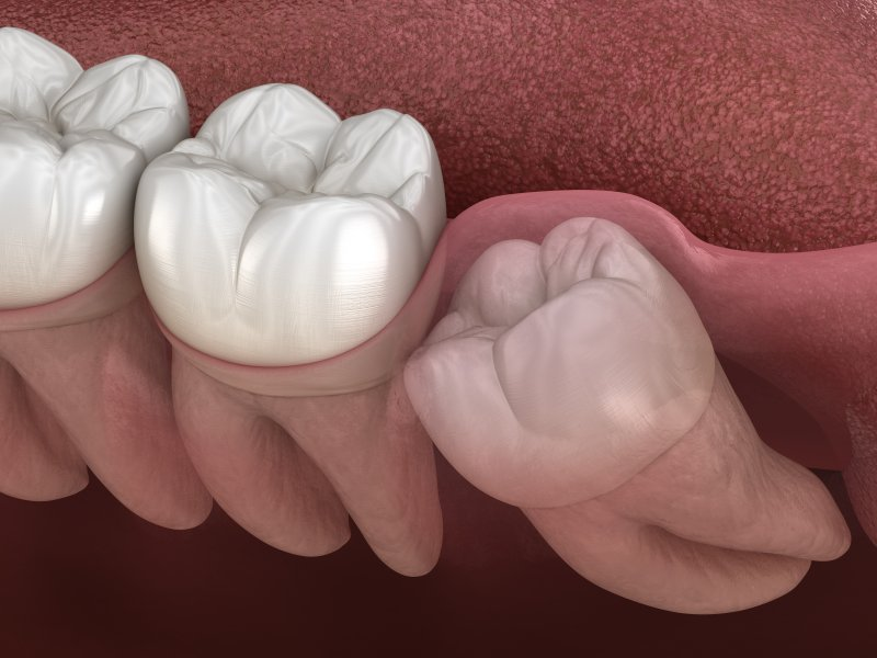 a digital image of an impacted wisdom tooth